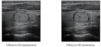 Система ультразвуковой диагностики Resona 7 6